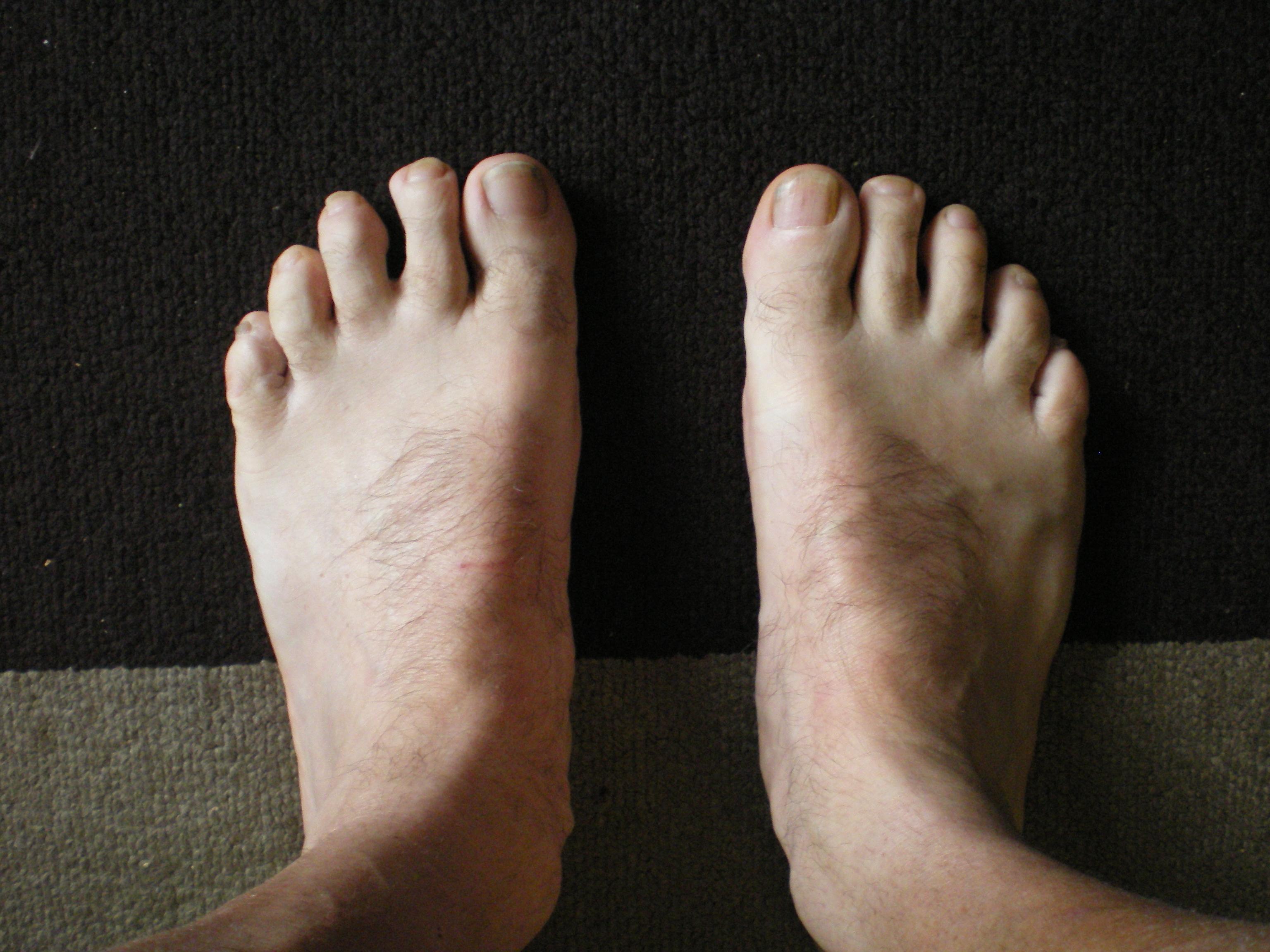 """""""Fred Flinstone Feet"""""""